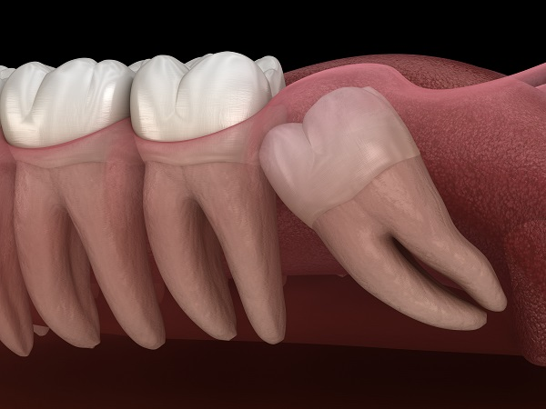 Signs To Consider Wisdom Tooth Extractions